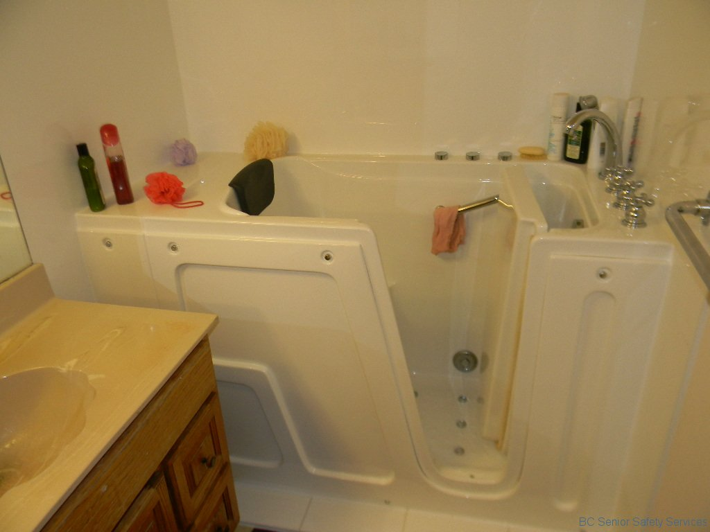 before and after picture gallery -